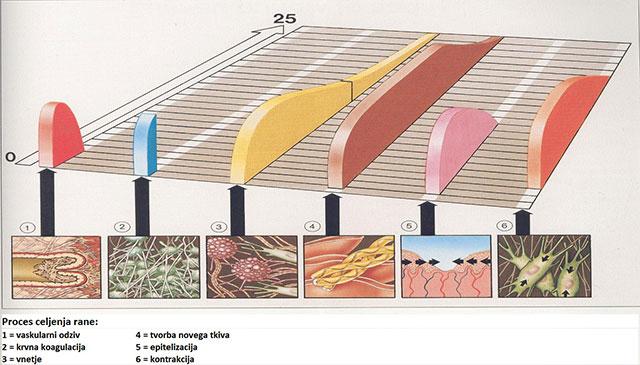 proces-celjenja-rane