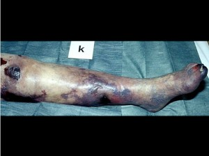 Slika 6 - Gangrena stopala in goleni